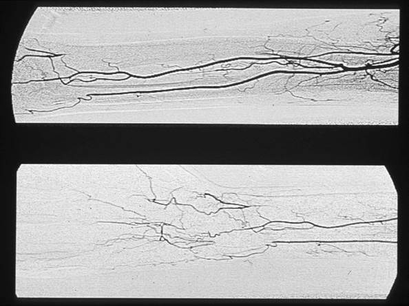 This pair of images shows the typical angiographic appearance of a patient with an arteriovenous stula (top) and how dierent patients have variable degrees of distal forearm and hand arterial occlusive disease (bottom). This can impact how patients adapt to the hemodynamic challenge of an arteriovenous stula leading to variable phenotypes of hand dysfunction.