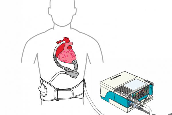 Diagram of LVAD on white background.