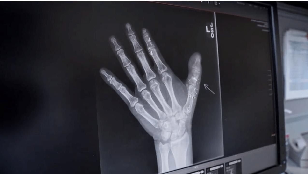 James' Story: Toe-to-Thumb Transfer