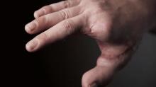 Chris' Story: Toe-to-Thumb Transfer